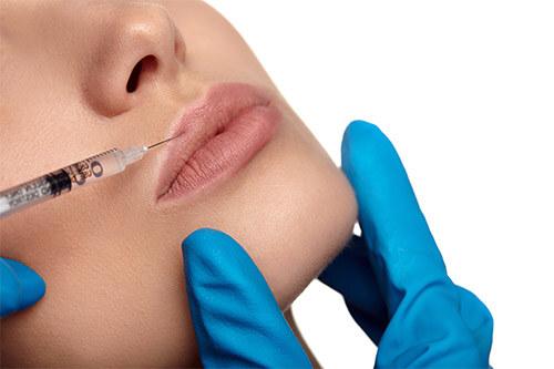 иньъекция гилауроновой кислоты в губы