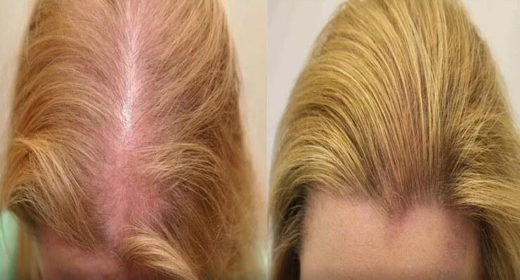 волосы до и после лечения их выпадения