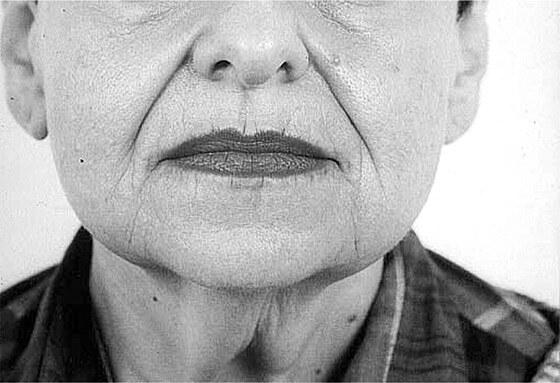 носогубный складки в старости