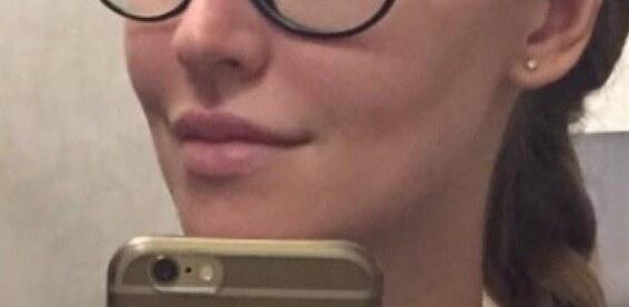 губы после процедуры