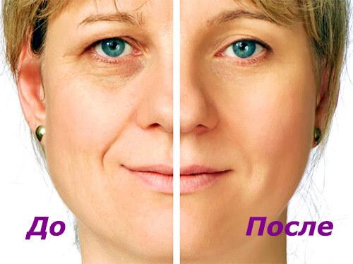 Факт омоложения лица до и после
