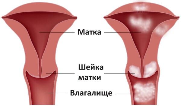 шейка матки и влагалище