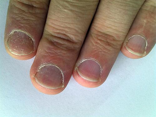 Грибок на руках между пальцев лечение мази