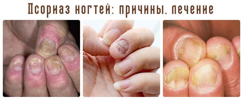 Строгановка Азовское Море Лечение Псориаза