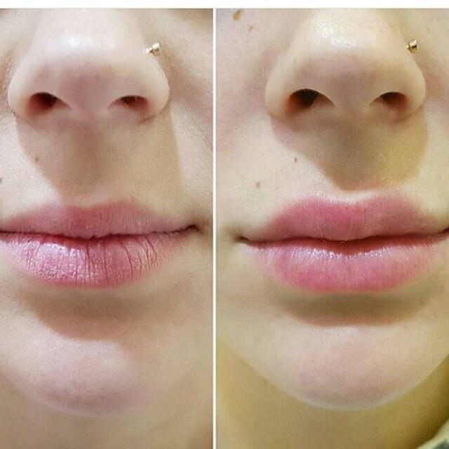 до и после укола в губы гиалуроновой кислоты
