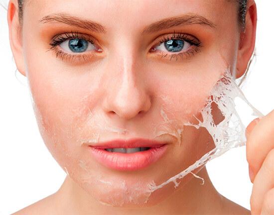 Шелушение кожи, слой эпидермиса