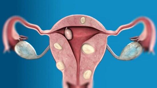Женские половые органы, образование миом в матке