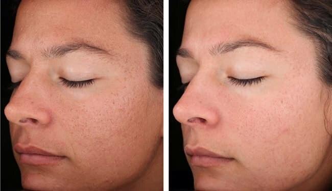 Фото кожи лица до и после процедуры пилинга